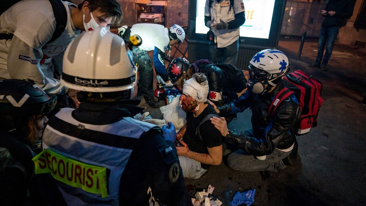 Protest gegen Polizeigewalt: Empörung in Frankreich nach schwerer Verletzung eines Fotografen